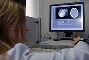 Mobile Stroke Unit: CT Diagnostik vor der Haustür.
