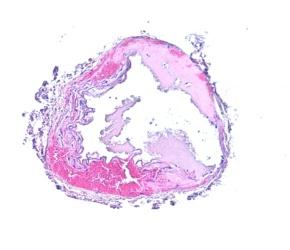 Ohne das Protein PLD 1, kann nach Gefäßschädigung kein Blutpfropf gebildet werden. (Quell: RVZ)