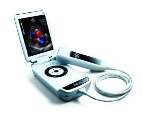 VScan Mini-Ultraschallgerät. (Foto: GE Healthcare)
