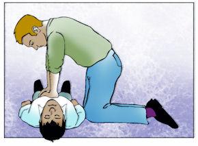 Das Brustbein pro Minute mindestens 100-mal eindrücken.