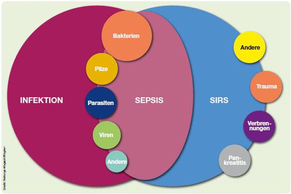 Sepsis_II