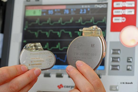 ICD, Defibrillator, Herzschrittmacher
